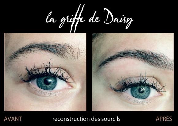 reconstruction-des-sourcils-06